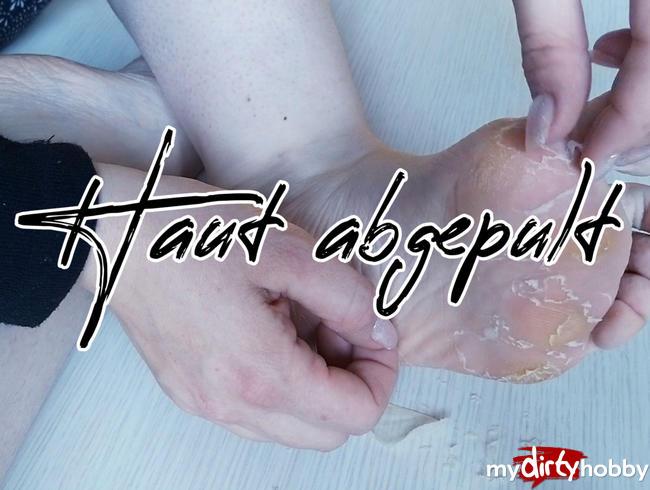 Video Thumbnail Haut abgepult